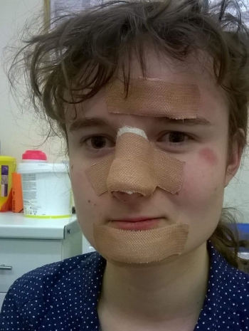 face-injury.jpg